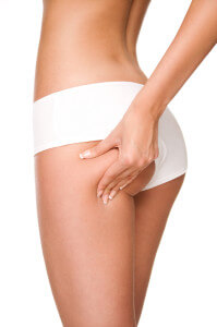 cellulite_reduction2